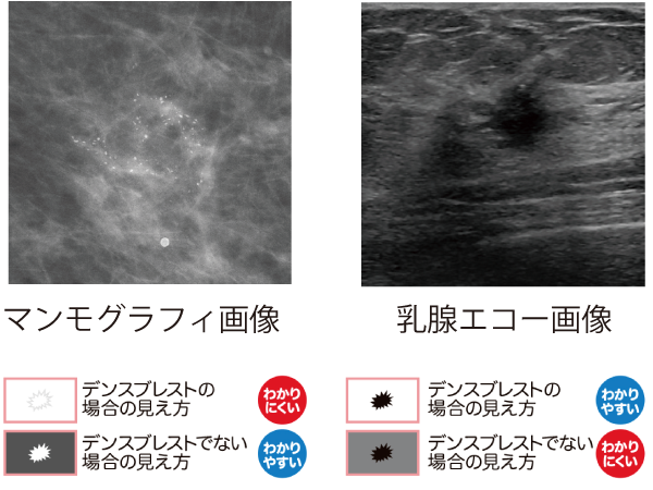 乳がん 検診 エコー マンモグラフィーとエコーの違い 乳癌