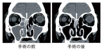 炎 副 手術 鼻腔